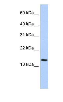 Western blot - IFI27L2 antibody (ab83332)