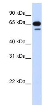 Western blot - R3HDM2 antibody (ab83335)