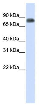 Western blot - MST1 antibody (ab83336)