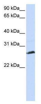 Western blot - SCP3 antibody (ab83341)
