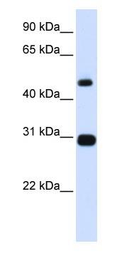 Western blot - PSMC3 antibody (ab83348)