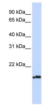 Western blot - Pallidin antibody (ab83349)