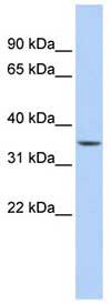 Western blot - SARG antibody (ab83357)