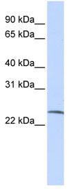 Western blot - SSX6 antibody (ab83385)