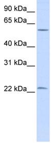 Western blot - Lin28 antibody (ab83400)