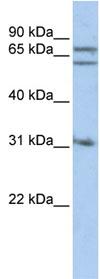Western blot - Gephyrin antibody (ab83401)