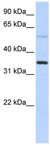 Western blot - ANKRD9 antibody (ab83405)