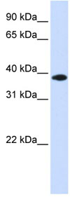 Western blot - GPD1L antibody (ab83406)