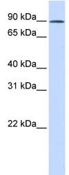 Western blot - C2orf3 antibody (ab83407)