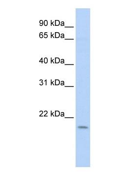Western blot - DNA Polymerase epsilon antibody (ab83442)