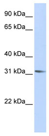 Western blot - RHOXF2 antibody (ab83455)