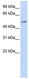 Western blot - PDIA6 antibody (ab83456)