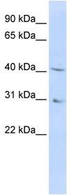Western blot - DHODH antibody (ab83457)