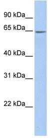 Western blot - ARSE antibody (ab83458)