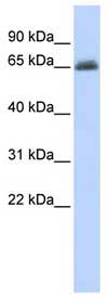 Western blot - UGT2B15 antibody (ab83468)