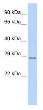 Western blot - TFPI2 antibody (ab83470)