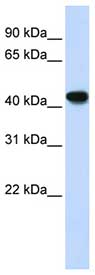 Western blot - ADH1B antibody (ab83475)