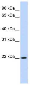 Western blot - DPCD antibody (ab83476)
