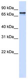 Western blot - SRP68 antibody (ab83483)