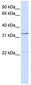 Western blot - TFIIE beta antibody (ab83484)