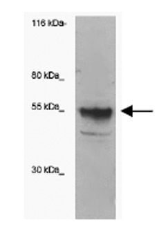 Western blot - ST6Gal antibody (ab83492)