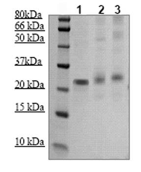 Western blot - SOCS1  antibody (ab83493)
