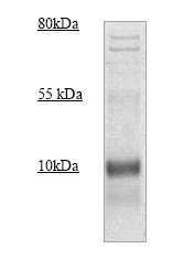 Western blot - Mammaglobin A antibody (ab83499)