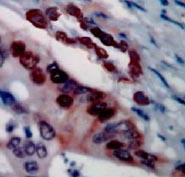 Immunohistochemistry (Formalin/PFA-fixed paraffin-embedded sections) - Mammaglobin A antibody (ab83499)