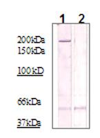 Western blot - ROCK2 (phospho T249) antibody (ab83514)