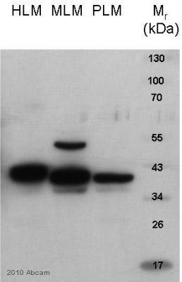 Western blot - HSD11B1 antibody (ab83522)