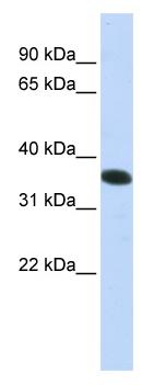 Western blot - C21orf59 antibody (ab83530)