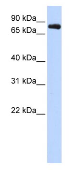 Western blot - KCNC3 antibody (ab83556)