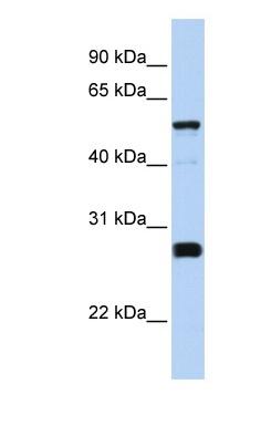 Western blot - FAM83F antibody (ab83561)
