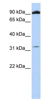 Western blot - Metabotropic Glutamate Receptor 6 antibody (ab83576)