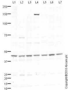 Western blot - Tristetraprolin antibody (ab83579)
