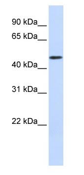 Western blot - WDR21A antibody (ab83655)