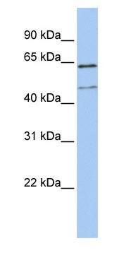 Western blot - LAMP3 antibody (ab83659)