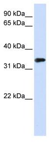 Western blot - MBD3 antibody (ab83662)