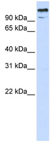 Western blot - ZBT10 antibody (ab83663)