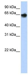 Western blot - Cytokeratin 1 antibody (ab83664)