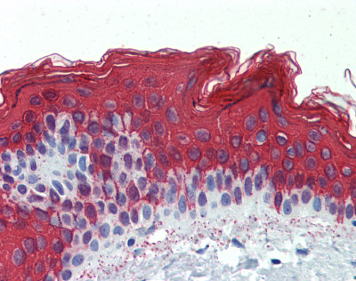 Immunohistochemistry (Formalin/PFA-fixed paraffin-embedded sections) - Anti-Cytokeratin 1 antibody (ab83664)