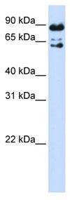Western blot - PPWD1 antibody (ab83667)