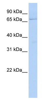 Western blot - GLMN antibody (ab83672)