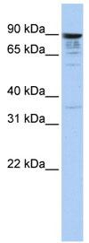 Western blot - MCTP1 antibody (ab83673)