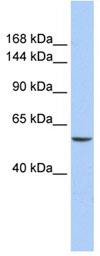 Western blot - CHD2 antibody (ab83675)