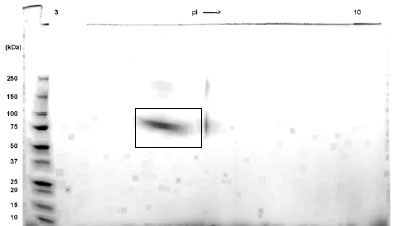 SDS-PAGE - IFNAR2 – Fc Chimera (ab83680)