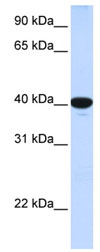 Western blot - glucose-6-phosphatase, catalytic subunit antibody (ab83690)
