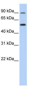 Western blot - SLC41A1 antibody (ab83701)