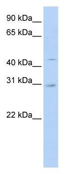 Western blot - SLC10A4 antibody (ab83706)