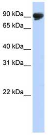 Western blot - TMTC4 antibody (ab83730)